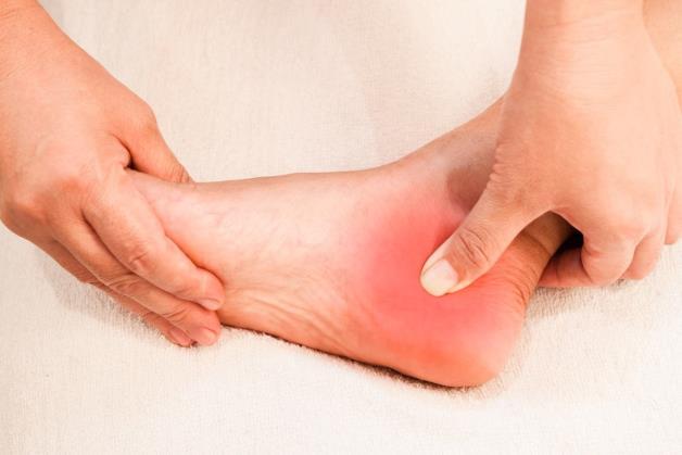 Przyczyny i leczenie ostróg piętowych