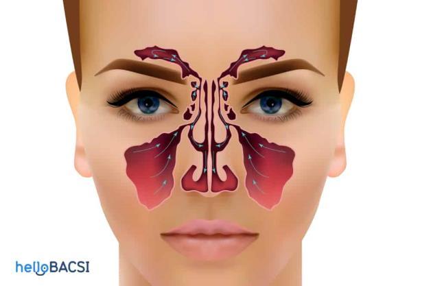 什麼是多鼻竇炎?症狀、原因和治療